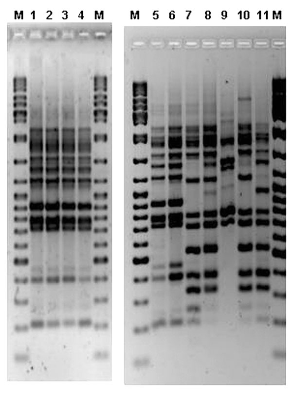Amplified fragment length polymorphism (AFLP) gel containing outbreak human and environmental Legionella pneumophila serogroup 1 isolates. M, molecular weight marker (Ladder Mix, MBI Fermentas, UK). Lanes 1 and 2, two colonies from a cooling tower of the hospital H. Lines 3 and 4, human isolates. Lanes 5 and 6, human isolates. Lanes 7–11, different environmental isolates from several Murcia installations.