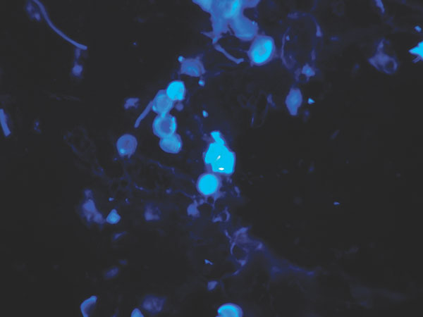 Calcofluor white stain of skin biopsy specimen. A short chain of lemon-shaped fungal cells is seen in the left-center of the field. Cells are connected to each other by thin, tubelike structures. Magnification x400.