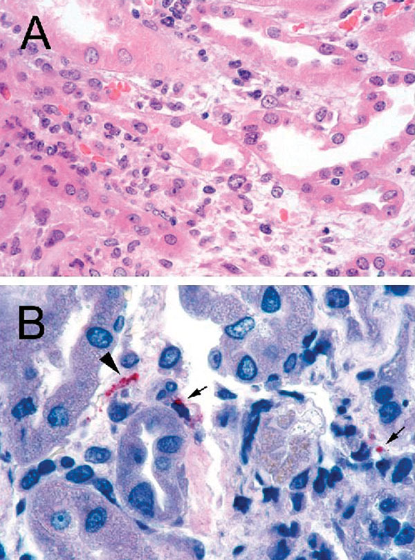 A: Renal biopsy shows inflammatory cell infiltrate in the interstitium and focal denudation of tubular epithelial cells. Hematoxylin and Eosin; original magnifications x100. B: Immunostaining of fragmented leptospire (arrowhead) and granular form of bacterial antigens (arrows). Original magnifications x158.