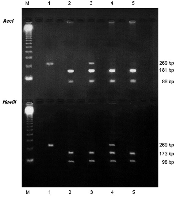 Identification of Pneumocystis jiroveci dihydropteroate synthase (DHPS) genotypes. Electrophoresis on 1.5% agarose gel of DHPS polymerase chain reaction products after digestion with AccI (upper line) and HaeIII (lower line). M, molecular weight marker (123 Gibco BRL; Cergy Pontoise, France). Lane 1: double mutant genotype; lanes 2 and 5: wild genotype; lane 3: mixed infection with a wild genotype and a mutant genotype that has the mutation at nucleotide position 165; lane 4: mixed infection wit