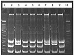 Thumbnail of Results of restriction enzyme analysis on 7% polyacrylamide gel showing the two restriction patterns obtained by digesting polymerase chain reaction products with HaeIII. Lanes 2, 4, 5, 6, and 9 show digestion of amplicons of Bartonella taylorii; lanes 3, 7, and 8 show digestion of B. grahamii amplicons; lanes 1 and 10 contain molecular weight markers.