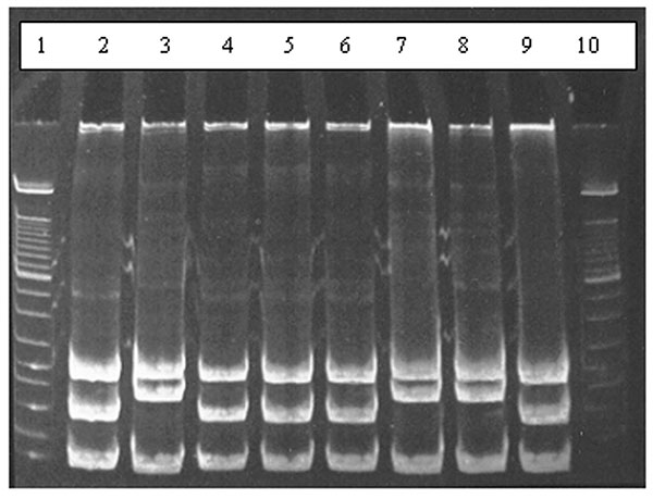 Results of restriction enzyme analysis on 7% polyacrylamide gel showing the two restriction patterns obtained by digesting polymerase chain reaction products with HaeIII. Lanes 2, 4, 5, 6, and 9 show digestion of amplicons of Bartonella taylorii; lanes 3, 7, and 8 show digestion of B. grahamii amplicons; lanes 1 and 10 contain molecular weight markers.