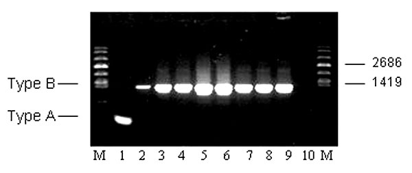 Molecular subtyping of representative Francisella tularensis isolates from Groups A, B, C, E, and F prairie dogs. The expected size PCR fragments for F. tularensis subsp. tularensis (Type A) and holarctica (Type B) are shown in lanes 1 and 2, respectively. Subtyping results for the five groups (A, B, C, E, F) are shown in lanes 3–9. Lane 3: TX021935 (A); lane 4: TX022151 (A); lane 5: TX022537 (B); lane 6: TX022592 (B); lane 7: TX022799 (C); lane 8: TX022107 (E); lane 9: CZ024233 (F). Lane 10: no