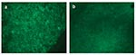 Thumbnail of Direct fluorescent assay (DFA) results on spleen tissues from a seronegative (panel a) and seropositive (panel b) prairie dog.