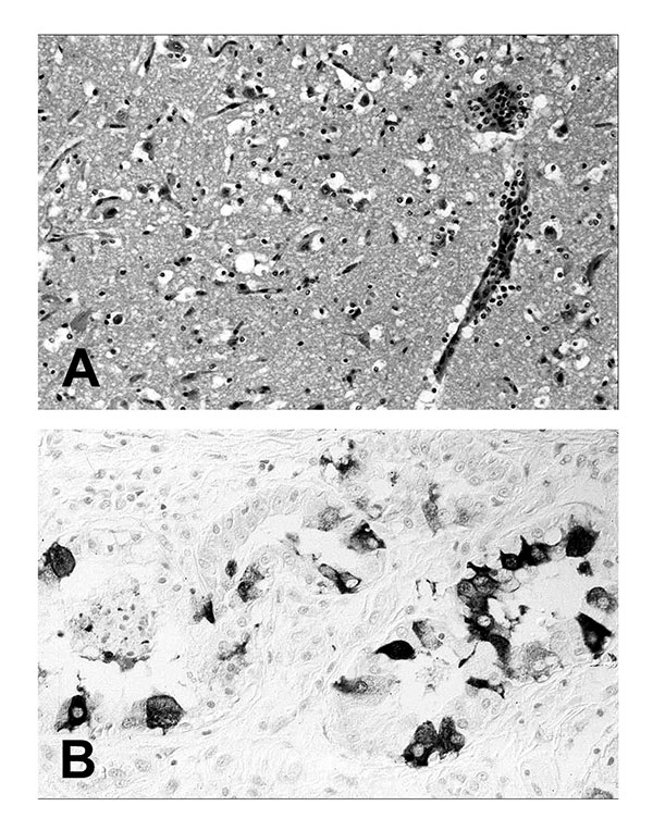 Tissue lesions from a harbor seal (Phoca vitulina) with phocine distemper virus infection. (A) Cerebral cortex with nonsuppurative encephalitis. Hematoxylin and eosin staining. (B) Immunohistochemical labeling of morbilliviral antigen in glandular epithelial cells of the lung. Avidin-biotin-peroxidase technique with Papanicolaou's hematoxylin counterstain.