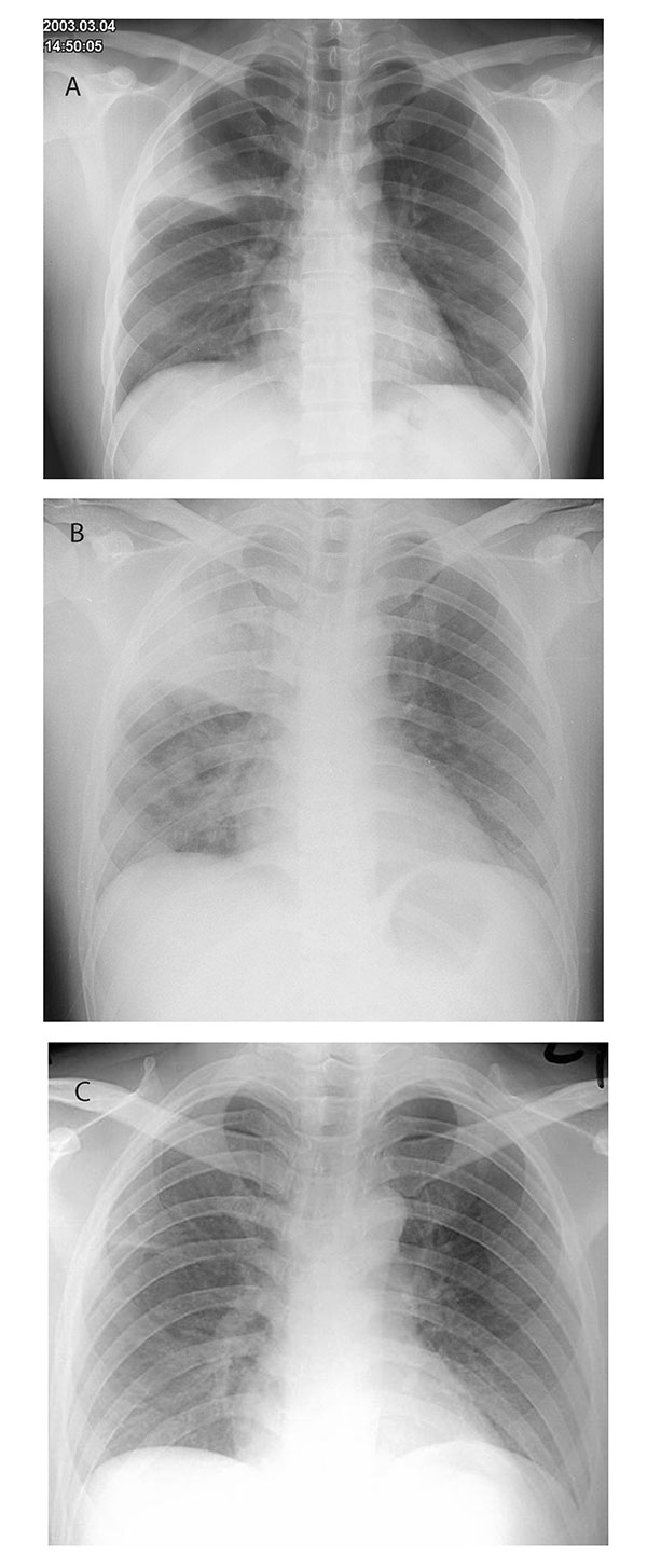 Chest radiographs performed A, at admission, B, on day 4, and C, on day 16 of hospitalization for index SARS case-patient, Prince of Wales Hospital.