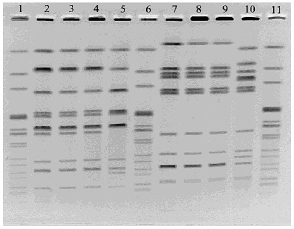 Pulsed-field gel electrophoresis of Salmonella enterica serotype Enteritidis isolates from Biorat and Ratin products using XbaI (lanes 2–5) and BlnI (lanes 7–10). Lanes 1, 6, and 11, molecular weight standard strain AM01144; lanes 2 and 7, Biorat isolate from 1998; lanes 3 and 8, Biorat isolate from 1995; lanes 4 and 9, Biorat isolate from 2001; lanes 5 and 10, Ratin isolate.