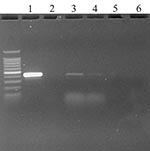 Thumbnail of Ethidium bromide stained agarose gel of ORF 1b standard reverse transcription–polymerase chain reaction (RT-PCR) products from oropharyngeal swabs of two chickens day 1 after injection. Key: 1) Positive control (severe acute respiratory syndrome coronavirus from Vero E6 culture); 2) Negative control (water); 3) and 4) Oropharyngeal swabs from chickens 337 and 341 at 1 days after injection; 5) Cloacal swab from turkey at day 2 after injection; and 6) Negative control from cloacal swa