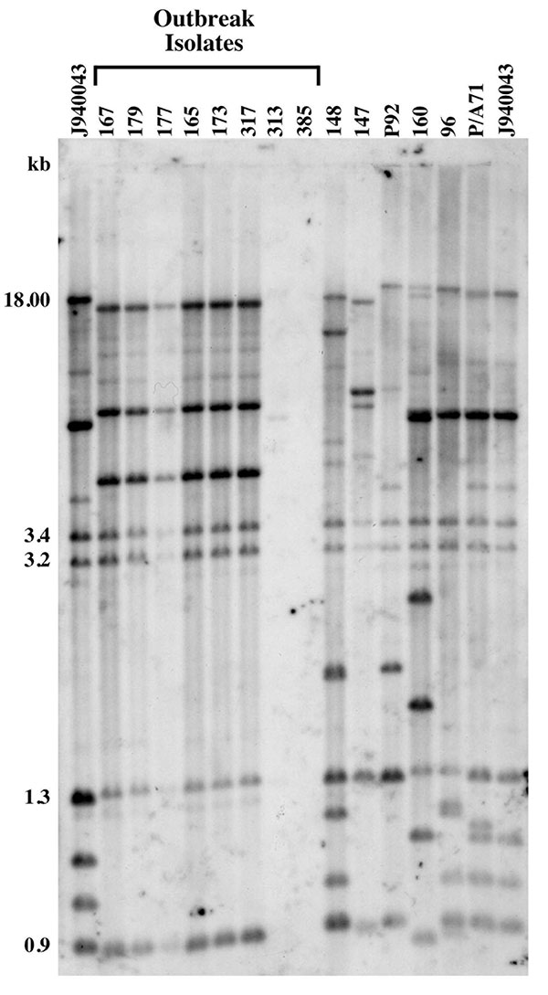 Genetic analysis of Candida parapsilosis clinical isolates. Southern blot hybridization patterns of the 14 C. parapsilosis test isolates were probed with the Cp3-13 DNA fingerprinting probe. The reference strain J940043 was run in the outer two lanes of the gel. Isolates associated with the hospital outbreak are indicated. Note that while isolates 167, 179, 177, 165, 173, and 317 displayed identical group I patterns, strains 313 and 385 showed patterns typical of non-group I strains with a lack