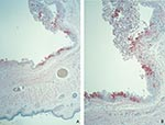 Thumbnail of Immunohistochemical staining of a prairie dog eyelid infected with monkeypox virus, showing orthopox virus antigen staining of the cytoplasm of the epithelium of the palpebral conjunctivae (assay using anti–variola virus antibody; original magnifications: A, 12.5X; B, 25X).