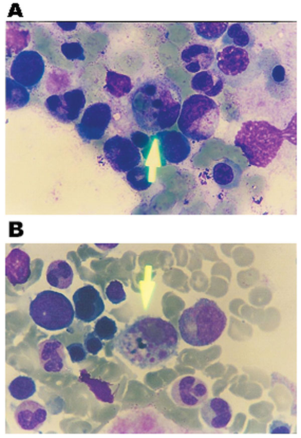 Bone marrow aspiration smear, stained with Wright, showing hemophagocytosis. A) shows phagocytosis of an erythrocyte and nuclear remnants by macrophance. B) shows phagocytosis of platelets by a macrophage.