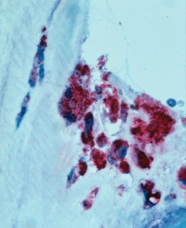 Immunohistochemical localization of Coxiella burnetii antigens in the aortic valve of a patient co-infected with HIV. Intact bacteria and fragment antigens are identified predominantly within macrophages in the fibrosed and calcified valve tissue. (Immunoalkaline phosphatase stain with naphthol phosphate fast-red substrate and hematoxylin counterstain, original magnification X100).