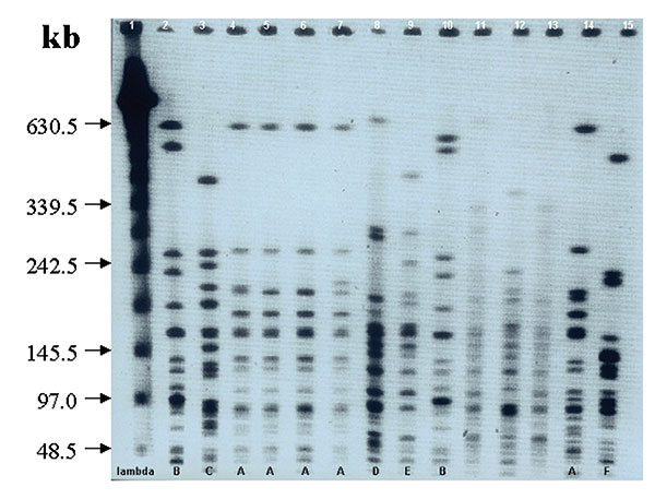 A typical pulsed-field gel electrophoresis analysis of selected isolates of A. baumannii restricted with ApaI. Lane 1 shows λ ladder used as molecular size marker. Lanes 11–13 are of strains not included in the trial. The gel shows 6 different clones of A. baumannii: 5 isolates belong to clone A and that 2 belong to clone B (the two dominant clones). Single isolates belonging to clones C, D, E, and F can be seen.