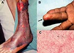 Thumbnail of Characteristic skin lesions of Vibrio vulnificus infection and morphotype of the microorganism. (A) Gangrenous change with hemorrhagic bullae over the leg in a 75-year-old patient with liver cirrhosis in whom septic shock and V. vulnificus bacteremia developed. (B) V. vulnificus bacteremia developed 1 day after a fish bone injury over the 4th finger of the left hand (arrow) in a 45-year-old patient with uremia. (C) Gram-negative curved bacilli (arrowhead) isolated from a blood sampl