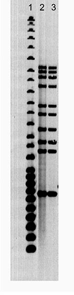 Thumbnail of Ten-band Mycobacterium tuberculosis restriction fragment length polymorphism pattern. Lane 1, 25-band Centers for Disease Control and Prevention standard; lane 2, human case; lane 3, canine case.