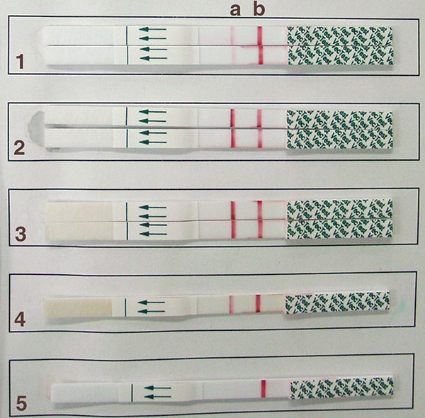 Results of testing by the VecTest assay. Each strip has a test zone (a) and a positive control zone (b). Samples 1–3 were run in duplicate. Note the difference in band intensity between sample 1 vs. samples 2 and 3 (all three are positive). Sample 4 was a positive control and sample 5 was a negative control.