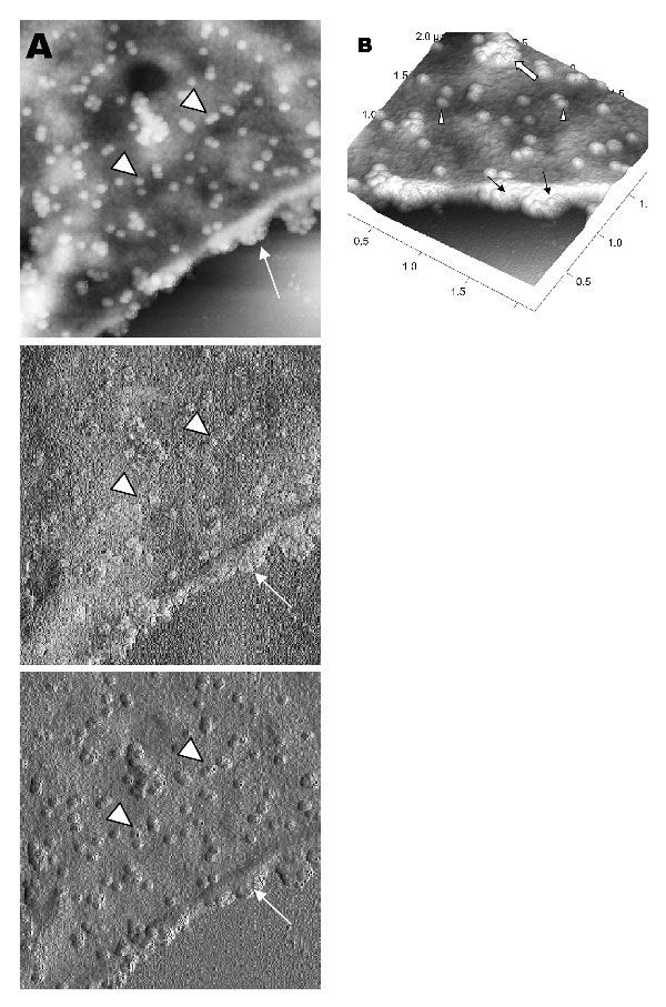 Atomic force microscopy of Vero cells infected with severe acute respiratory syndrome–associated coronavirus. A) High activity of virus extrusion at the thickened edge of the infected cells (arrow). Arrowheads indicate virus particles. B) A three-dimensional reconstruction of the image in panel A shows the puffy edge of infected cells. Many intracellular viruses are visible just under the plasma membrane (arrows). Extruded virus particles are present on other areas of the cell surface (arrowhead