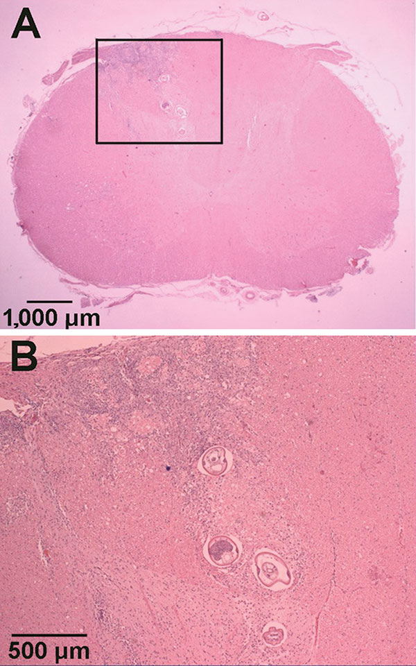 Hematoxylin and eosin–stained sections of Parastrongylus cantonensis in the parenchyma of the cervical spinal cord of a gibbon (Hylobates lar) from Florida (A). Enlarged image of inset from panel A (B).