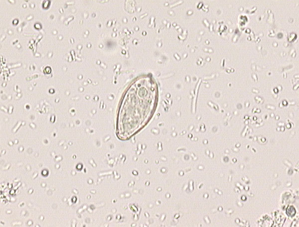 Opisthorchis-Clonorchis egg detected in the stool of one patient.