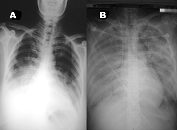 A. Chest radiograph on hospital day 5 at referring hospital shows patchy infiltration at bilateral lower lung fields. B. Chest radiograph upon admission to our hospital (24 hours later) shows rapidly progressive pneumonia in both lung fields, compatible with adult respiratory distress syndrome.
