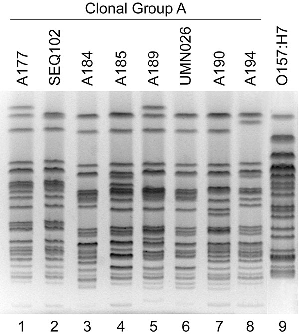 "XbaI pulsed-field gel electrophoresis profiles of Escherichia coli clonal group A (CGA) isolates and E. coli O157:H7. Lane numbers are shown below the gel image. Six CGA isolates from Chicago, IL (""A"" series identifiers; lanes 1, 3, 4, 5, 7, and 8) exhibit similar profiles to reference CGA isolates SEQ102 (from California; lane 2) and UMN26 (from Minnesota; lane 6) (1). E. coli O157:H7 isolate G5244 (lane 9) exhibits a distinctive profile."