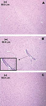 Thumbnail of Brainstem section of sham-inoculated control rat, showing the absence of an inflammatory response (A). Vascular and perivascular infiltration of mononuclear cells within the brainstem of a Florida cotton rat 7 days after infection with 3.2 log10 PFU/mL EVEV strain FE4-71k; inset enlarged to show cell infiltration (B). Cortex of cotton rat 5 weeks after infection, showing absence of inflammatory response (C). Animals in panels A and B were anesthetized with pentobarbital and perfused