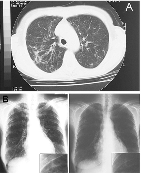A) Pulmonary computed tomographic scan representation of Mycobacterium lentiflavum lesions. Radiologic image shows the appearance of a widespread reticulonodular alteration and an opacity in the left middle lobe. B) Chest radiograph evolution after 3 months of treatment shows a sustained improvement of the radiologic alterations to the left pulmonary middle lobe.