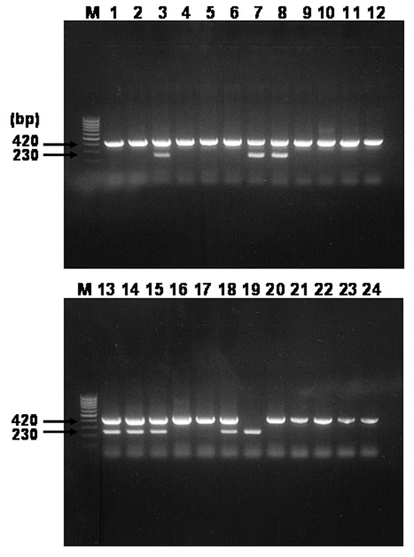 Agarose gel electrophoresis analysis on 1.5% agarose gel of DNA sequences amplified by multiplex-nested polymerase chain reaction (PCR) assay by using outer and inner primer sets targeted rompB gene and template DNAs from serum samples. Lanes: M, size marker DNA (100-bp DNA ladder); 1–24, each number of amplified H products. The number on the left indicates the molecular size (in bp) of the amplified PCR products.