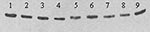 "Thumbnail of Western blot showing differing mobility of E proteins from nine plaque-purified variants of West Nile virus (WNV) strain TM-171 Mex03. Nucleotide sequencing of strains in lanes 5 to 9 indicated the presence of an ""NYS"" glycosylation motif at residues 154 to 156 of E, while strains in lanes 1 to 4 encoded ""NYP."" Antigens were separated in a nonreducing 5%/10% discontinuous sodium dodecyl sulfate–polyacrylamide gel, transferred to 0.2 μm nitrocellulose and detected with WNV-specific m"