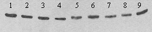 "Western blot showing differing mobility of E proteins from nine plaque-purified variants of West Nile virus (WNV) strain TM-171 Mex03. Nucleotide sequencing of strains in lanes 5 to 9 indicated the presence of an ""NYS"" glycosylation motif at residues 154 to 156 of E, while strains in lanes 1 to 4 encoded ""NYP."" Antigens were separated in a nonreducing 5%/10% discontinuous sodium dodecyl sulfate–polyacrylamide gel, transferred to 0.2 μm nitrocellulose and detected with WNV-specific monoclonal ant"