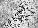 Thumbnail of Presence of numerous, broad (3−9 μm in diameter), irregular, septate hyphae in a pyogranulomatous dermatitis (Gomori methenamine silver stain). Bar = 15 μm.