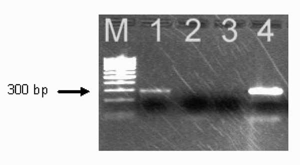 Polymerase chain reaction amplification of Anaplasma phagocytophilum DNA from the patient's acute-phase blood sample. Amplified DNA was separated by electrophoresis through the 2% agarose gel stained with ethidium bromide. Lane 1, patient sample (note the presence of the band at ≈293 bp); lane 2, negative sample; lane 3, negative control (no-DNA template control); lane 4 positive control (DNA extracted from the cultured isolate of A. phagocytophilum). Lane M represents a 100-bp DNA ladder for es