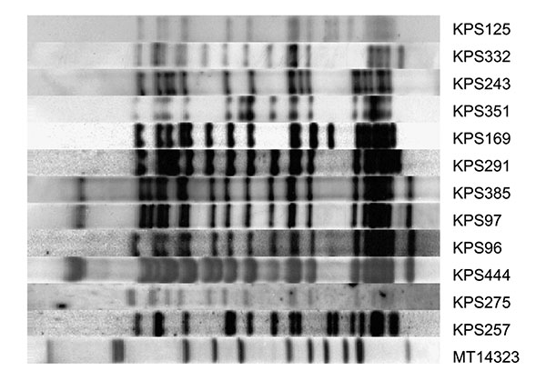 Restriction fragment length polymorphism patterns of 12 Beijing strains from Karonga District, Malawi. All strains were >79% related to at least 1 of the other Beijing strains found in the district. Strain MT14323 is a reference strain.