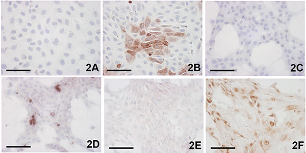 Demonstration of Usutu virus antigen 3 days postinfection. Immunohistochemical (IHC) tests were performed by using a polyclonal antibody to West Nile virus, which cross-reacts with Usutu virus. A) Vero control; B) Vero infected; C) CR (feline) control; D) CR infected; E) goose embryo fibroblast (GEF) control; F) GEF infected; A,B) bar = 50 μm; C–F) bar = 100 μm. †3 days postinfection (p.i.), IHC staining.