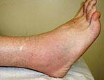 Thumbnail of Patient 1: ankle swelling, pain, tenderness, erythema, and warmth on day 10 of illness.