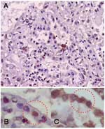 Thumbnail of Immunohistochemical analysis showing influenza A antigen-specific staining in nuclei of cells lining the alveoli (A). To identify the cell type, slides from consecutive sections were stained with anti-influenza A antibody (B) and double-stained with antiinfluenza A and antisurfactant antibodies (C). The sections were mapped, and the same area in each section was examined. Viral antigen-positive cells were stained both intranuclearly with antiinfluenza antibody and intracytoplasmical