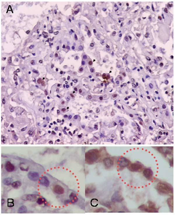Immunohistochemical analysis showing influenza A antigen-specific staining in nuclei of cells lining the alveoli (A). To identify the cell type, slides from consecutive sections were stained with anti-influenza A antibody (B) and double-stained with antiinfluenza A and antisurfactant antibodies (C). The sections were mapped, and the same area in each section was examined. Viral antigen-positive cells were stained both intranuclearly with antiinfluenza antibody and intracytoplasmically with antis