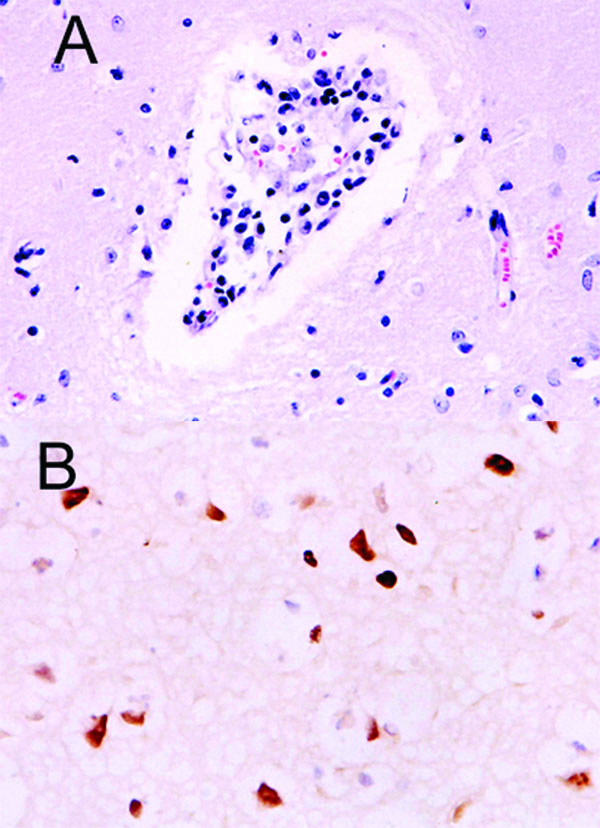 Histopathologic and immunohistochemical evidence of H5N1 virus in tiger: A) Mild multifocal nonsuppurative encephalitis; B) Influenza A virus antigen in nuclei and cytoplasm visible as brown staining.
