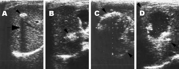 Lesions of alveolar echinococcosis (AE) by abdominal ultrasound examination. A) Calcified lesion: hyperechoic structure with a typical posterior shadow. B) Nodular hyperechoic lesion. C) Typical AE lesion: nonhomogeneous hyperechoic partially calcified area, without central necrosis. D) Typical AE lesion with central necrosis.