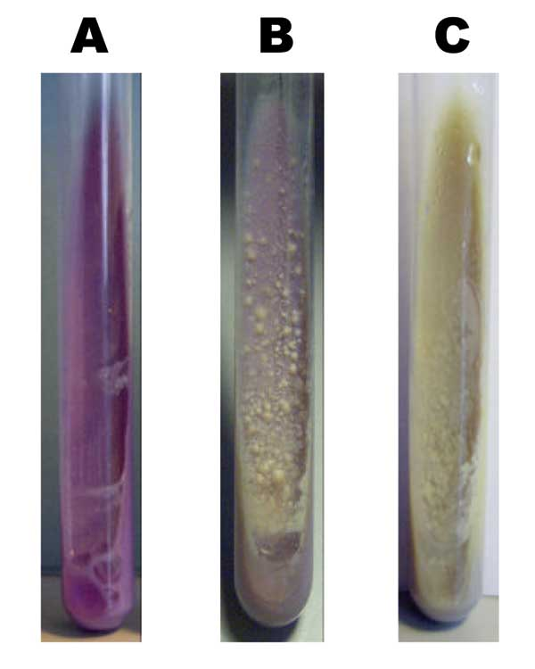 Growth morphology on bromcresol purple medium of Mycobacterium bovis (A), M. tuberculosis (C), and 1 of the strains analyzed (B).