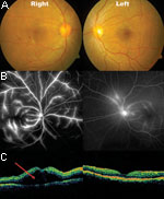 Thumbnail of Fundal photos, fundal fluorescein angiography and optical coherence tomography (OCT) of patient 9. A) areas of blot hemorrhages temporal to the right fovea. B) bilateral dye leakage from the retinal veins, more severe on the right than left. C) OCT gives a 2-dimensional graphic representation of a cross-section of the macular region. The area marked with the red arrow marks the site of exudative retinal detachment. Both sides have marked retinal thickening (edema). Photo: Ken Thian.