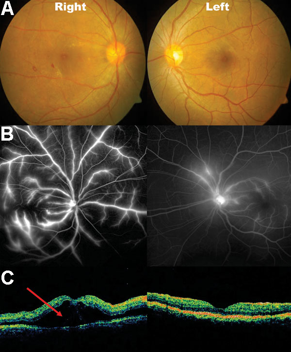 Fundal photos, fundal fluorescein angiography and optical coherence tomography (OCT) of patient 9. A) areas of blot hemorrhages temporal to the right fovea. B) bilateral dye leakage from the retinal veins, more severe on the right than left. C) OCT gives a 2-dimensional graphic representation of a cross-section of the macular region. The area marked with the red arrow marks the site of exudative retinal detachment. Both sides have marked retinal thickening (edema). Photo: Ken Thian.