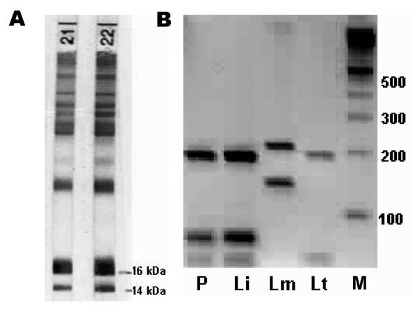 A) Immunoblot of the patient (strip no. 21) and the patient's mother (strip no. 22) showing specific antibodies against 14- and 16-kDa proteins of Leishmania infantum. B) restriction fragment length polymorphism patterns after HaeIII digestion of the ribosomal internal transcribed spacer 1 polymerase chain reaction products. P, patient; Li, L. infantum; Lm, L. major; Lt, L. tropica; M, 100-bp ladder.