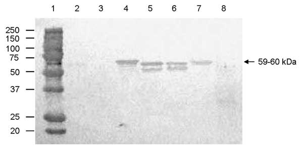Antigenic cross-reactivity between human genogroup (G) II norovirus (NoV) capsid proteins and a pig convalescent-phase antiserum (LL616) against porcine QW101-like (GII-18) NoV was determined by Western blot. The CsCl-gradient purified viruslike particles (1,250 ng) were separated by sodium dodecyl sulfate 10% polyacrylamide gel electrophoresis, blotted onto nitrocellulose membranes, and tested with LL616. The sucrose-cushion (40%, wt/vol) purified Sf9 insect cell proteins acted as a negative co