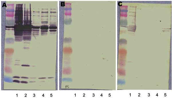 Western blot and cross-adsorption results in a patient with Bartonella quintana endocarditis. A) Nonadsorbed. B) Adsorbed with B. quintana. C) Adsorbed with B. henselae. Lane 1, B. quintana; lane 2, B. henselae; lane 3, B. elizabethae; lane 4, B. vinsonii subsp. Berkhoffi; lane 5, B. vinsonii subsp. Arupensis. Before adsorption (A), antibodies are detected against all species (1, 2, 3, 4, and 5). After adsorption with B. quintana antigen (B), all antibodies disappear. After adsorption with B. he