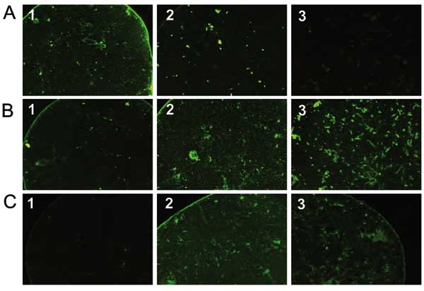 Pictures of immunofluorescence assay performed on serum specimens with proven Rickettsia conorii (A), R. felis (B), or R. typhi (C) infection showing cross-reactive antibodies. Antigens tested were R. conorii (column 1), R. felis (column 2), and R. typhi (column 3). The serum with R. conorii infection reacts with R. conorii and R. felis antigens but not with R. typhi (A). Conversely, the serum with R. typhi infection reacts with R. typhi and R. felis but not with R. conorii (C). Finally, the ser