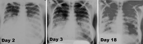 Three serial frontal chest radiographs from surviving caregiver B2 with primary pneumonic plague obtained on illness days 2, 3, and 18 showing bilateral lower lung zone predominant airspace disease associated with bilateral (right > left) pleural effusions. The radiographs have artifacts related to hand-dipping of the films, which account for multiple densities that move between images and the areas of apparent lucency.