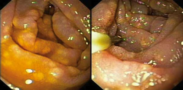 Yellow plaques in the mucosa of the duodenum in patient 2. Similar lesions had been observed in patient 1 in the colon, ileum, and bladder, whereas white lesion had been described in the other AIDS patient with gastrointestinal disease (9).