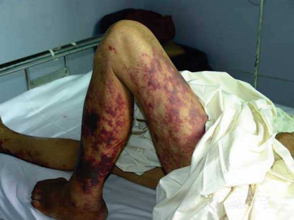 Figure 4. Photograph of a Streptococcus suis patient's legs with streptococcal toxic shock syndrome, featuring purpura and evidence of gangrenous changes in the calf extending down to the foot.