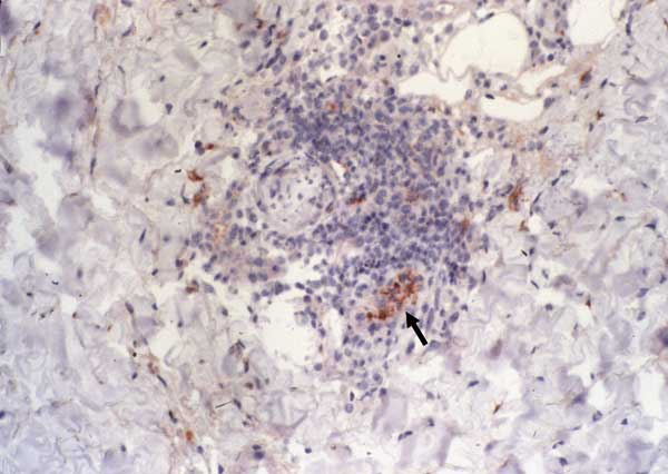Immunohistochemical detection of Rickettsia africae in the inoculation eschar of a patient with African tick-bite fever. Note the location of the bacteria in the endothelial and inflammatory cells of a blood vessel in the dermis (arrow) (monoclonal rabbit anti-R. africae antibody used at a dilution of 1:1,000 and hematoxylin counterstain; original magnification ×250).